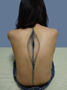 how to turn a scar into a work of art?